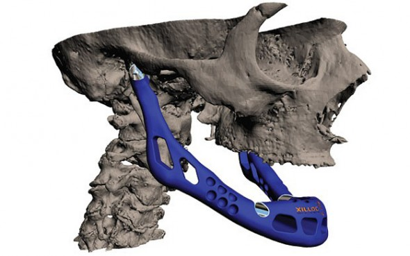 Custom Jaw Transplant Created With 3-D Printer