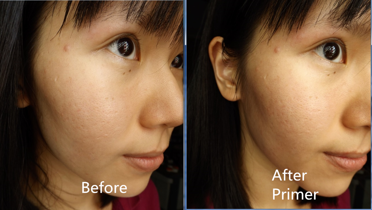 Makeup] Covering Depressed Scars With Makeup (WITHOUT CONCEALER ...