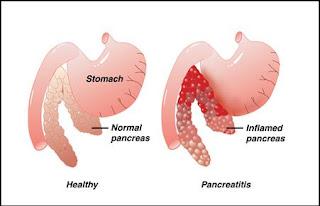 inflamed pancreas