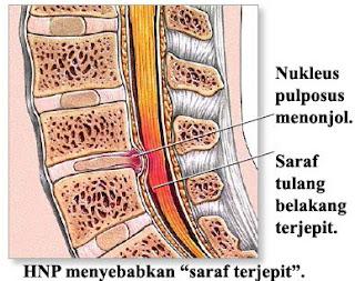 Obat untuk Syaraf Kejepit