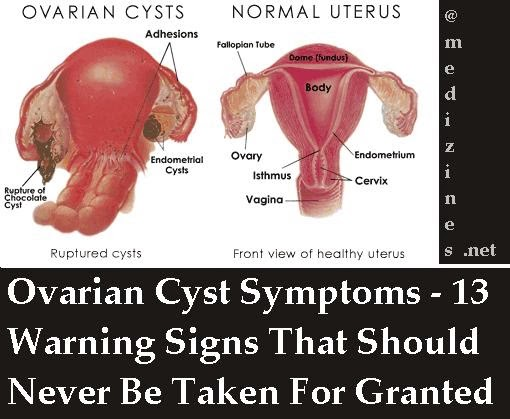 Ovarian Cyst Symptoms - 13 Warning Signs That Should Never ...