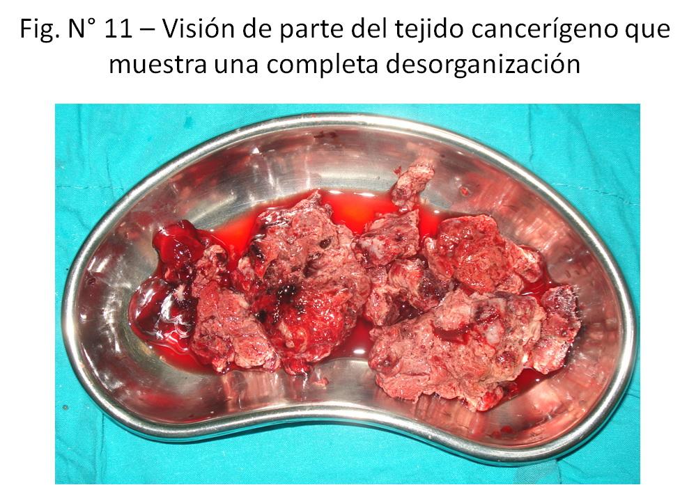 Soluciones Quirúrgicas: ¿Con cuánto de intestino se puede vivir?