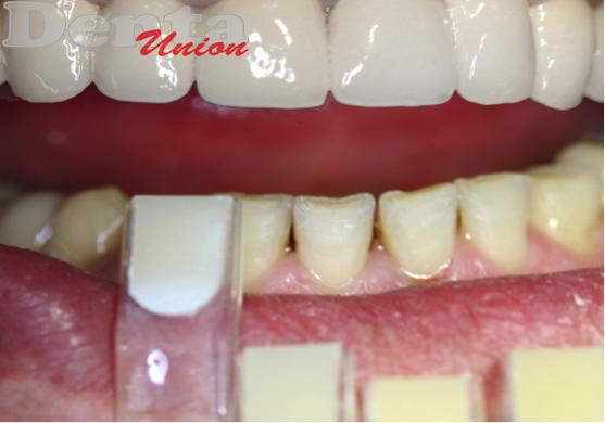 Натурально ли смотрится цвет зубов а2