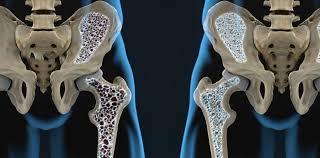 Saiba mais sobre a Prevenção da Osteoporose