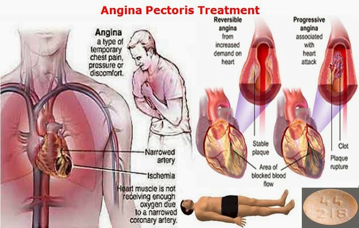 world hospital: angina, Skeleton