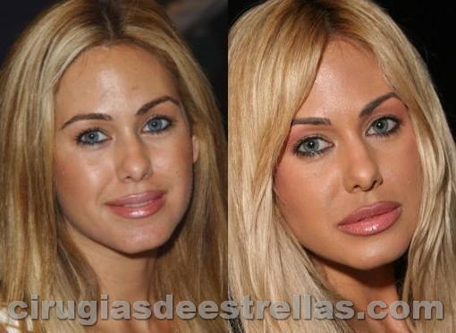 Shauna Sand antes y después