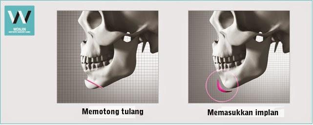 Operasi ujung dagu untuk kasus tidak berdagu di Klinik Operasi Plastik Wonjin
