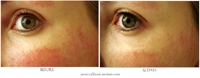 Nerium Before and After