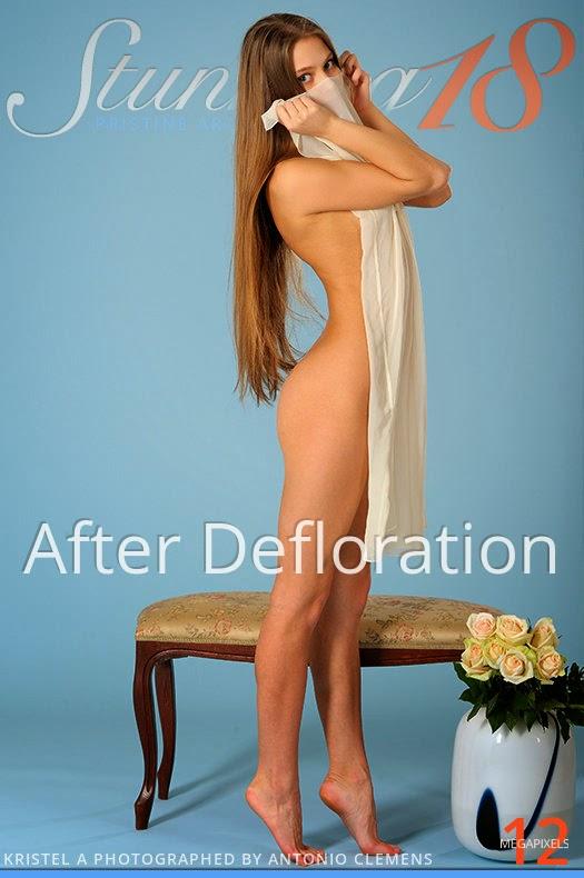 Ukgbunning1o 2014-06-17 Kristel A - After Defloration 07010
