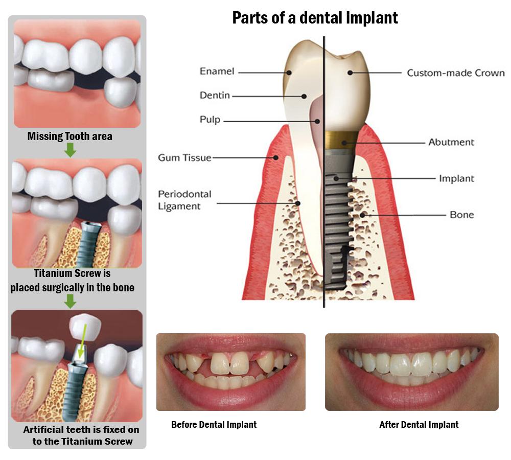 http://psdentalcentre.com/dental-services/dental-implants