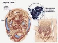 Obat Penyakit Kanker Serviks Alami