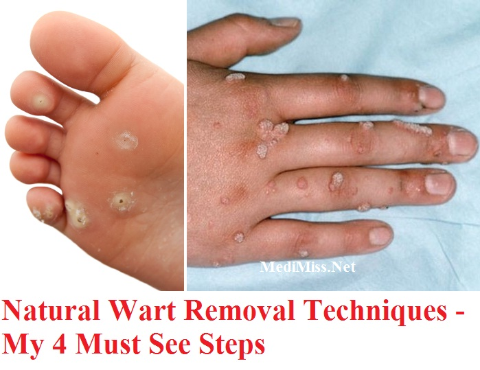 Natural Plantars Wart Treatment