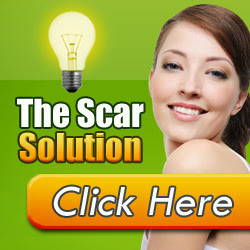 Stop Acne Scars