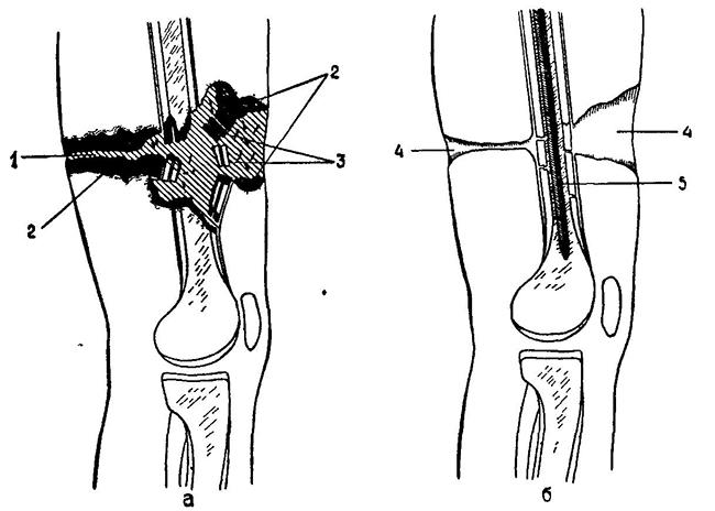 Основные типы огнестрельных ранений и их влияние на человека.Реакция человека на огнестрельное ранение Ранения в голову Ранения в корпус Ранения в конечности