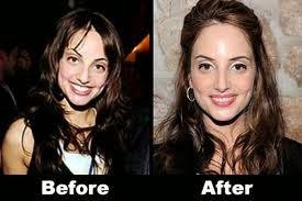 Alexa Ray Joel Nose Job Joel Plastic Surgery Nose