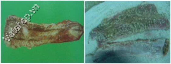 Hình 4: Manh tràng có máu (trái) và có màng giả (phải)