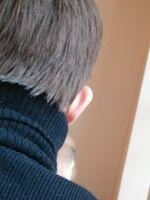 Que importante es consultar a tiempo las alteraciones y enfermedades de los genitales masculinos.