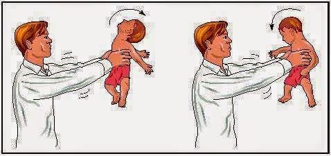 Bahaya Timang Anak