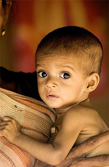 child malnurition in india Child malnutrition in india child malnutrition in india.