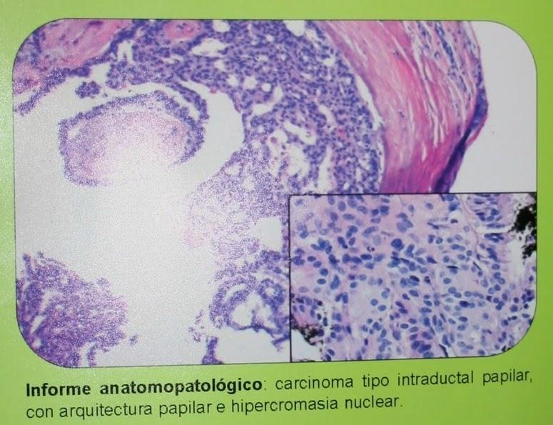 Carcinoma papilar intraductal de mama