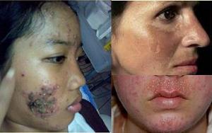 bahaya dan akibat merkuri pada kosmetik