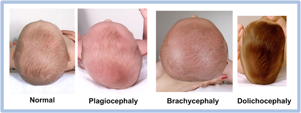 Are adult with plagiocephaly