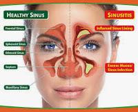 Cara Cepat Sembuhkan Penyakit sinusitis