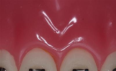 Paslanmaz çelik ligatür model üzerinde (renkli diş teli)