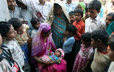 Heboh! Bayi Bermata 4 dan Berkepala 2 dari India