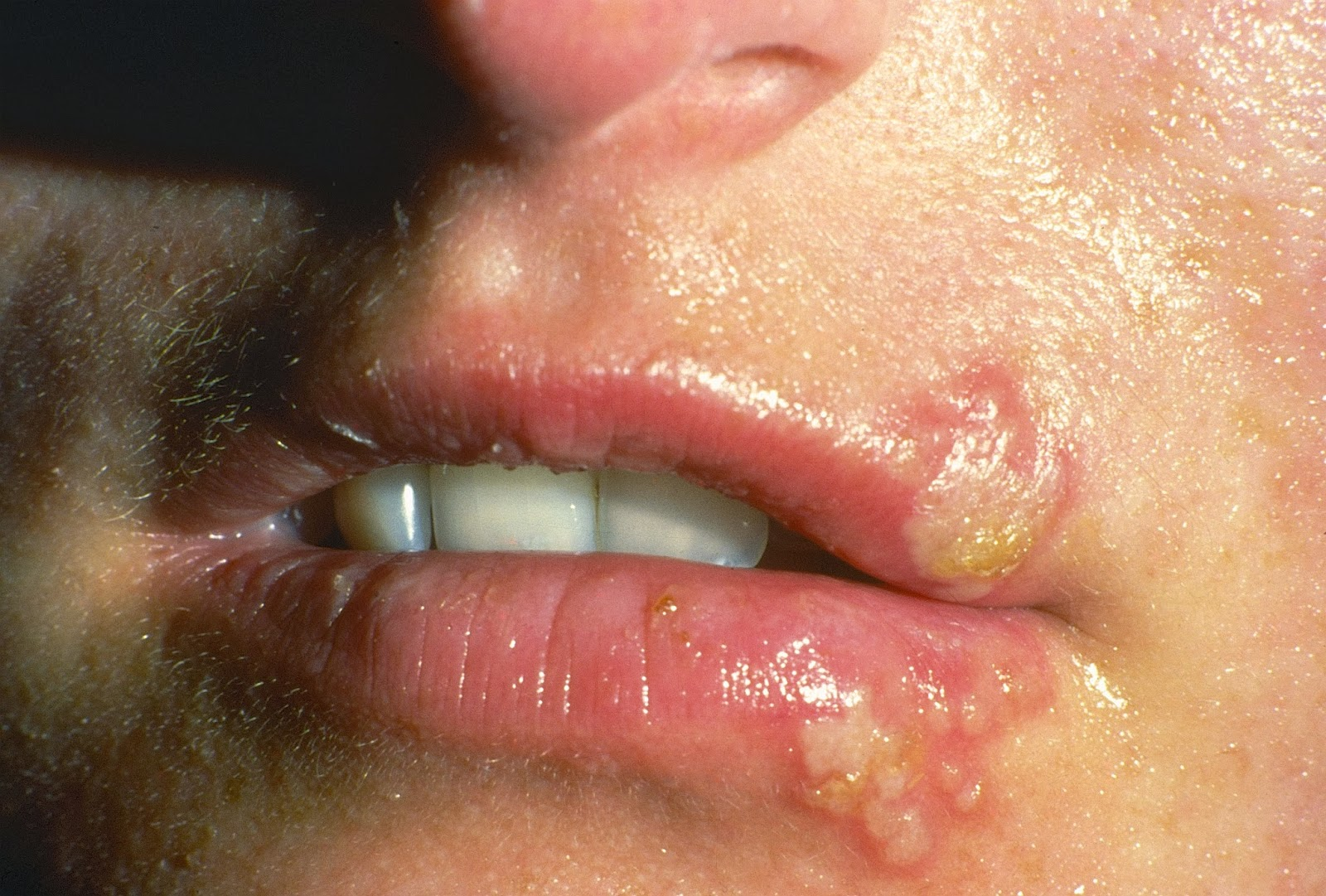 herpes-treatments-symptoms-4