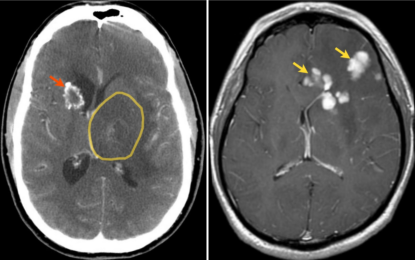Health From Trusted Sources Brain Ct Mri