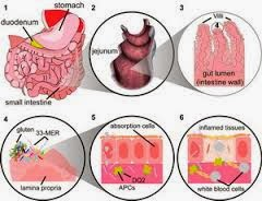 Obat Untuk Penyakit Celiac