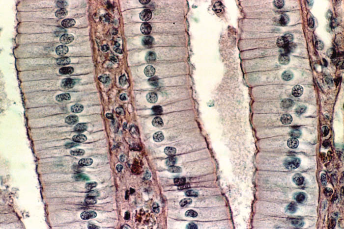 epithelial tissues Be able to classify epithelial tissues know the structure and function of junctions  know the structure of apical specializations and their functions be able to.