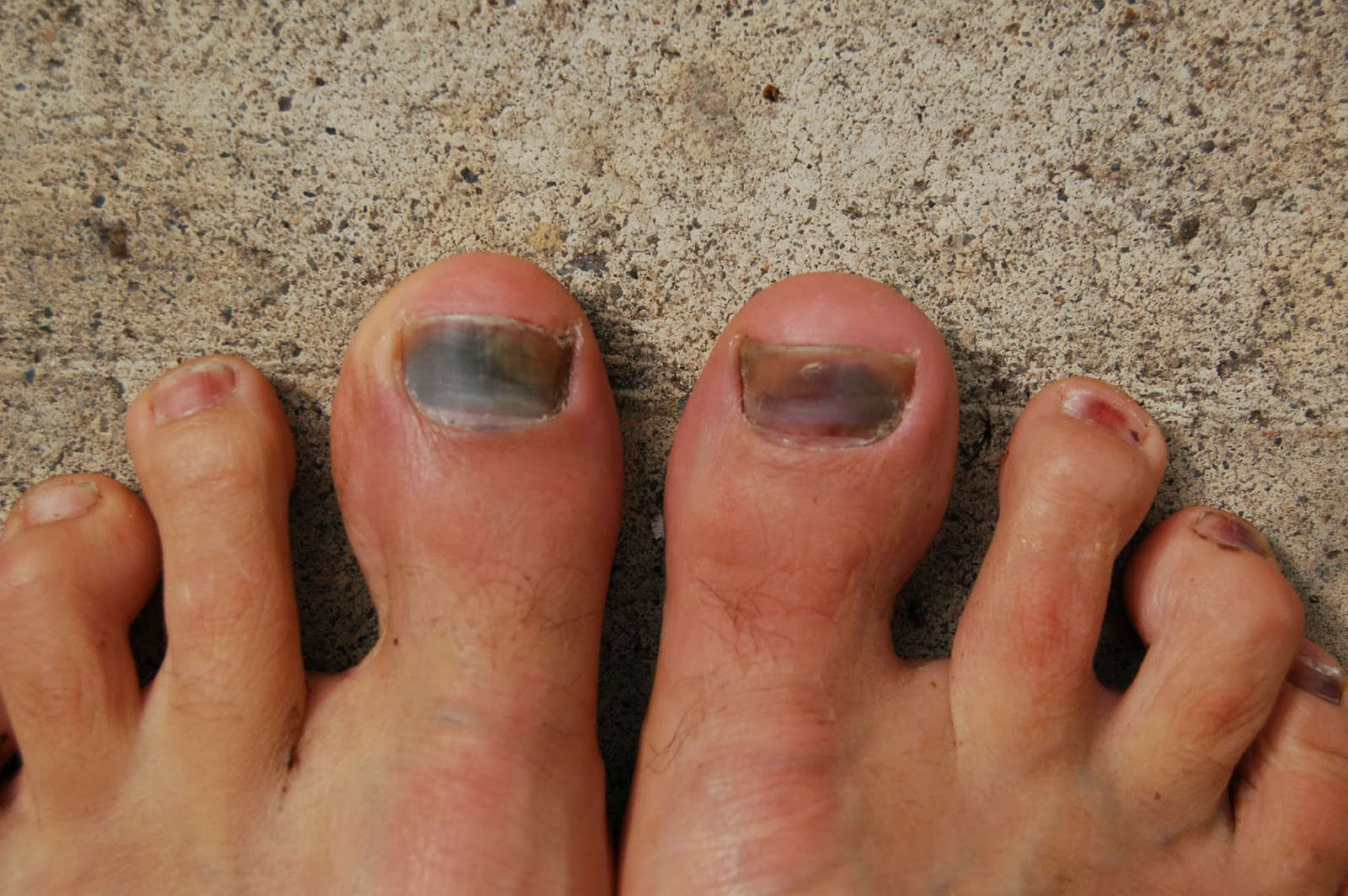 How to Bruise and Blacken Your Toenails - Appalachian Mountain Club