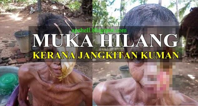 Muka Perempuan Ini Hilang Kerana Kuman (9 Gambar)