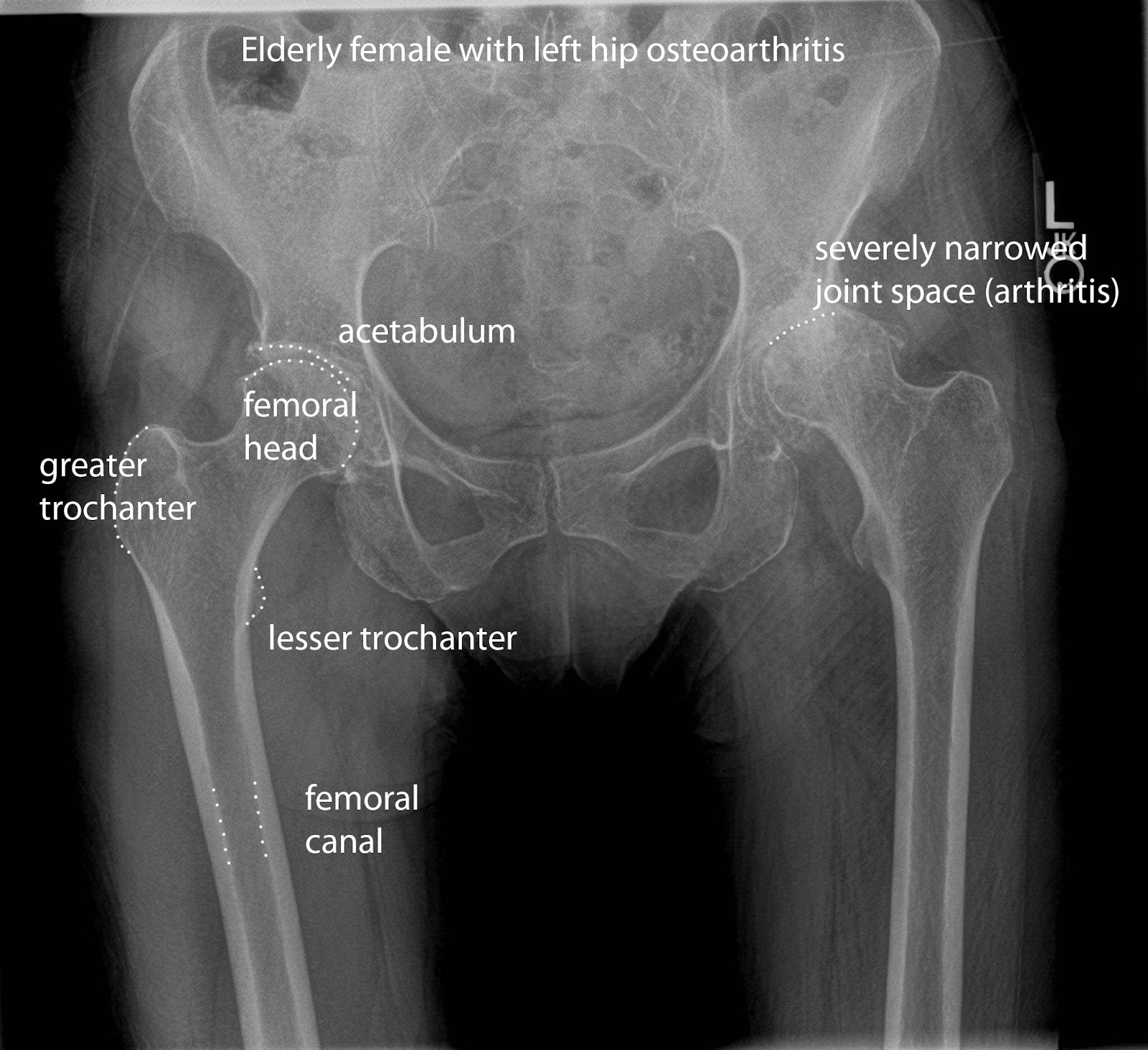 Hip joint Radiologyanatomy | Radiology Anatomy Images