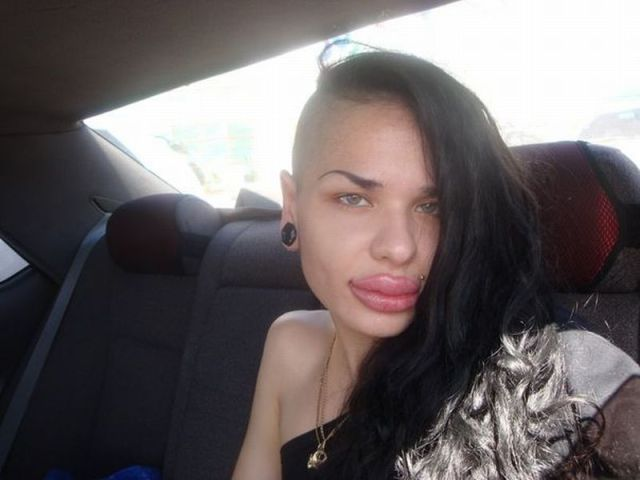 This Russian Girl Has The Biggest Lips In The World