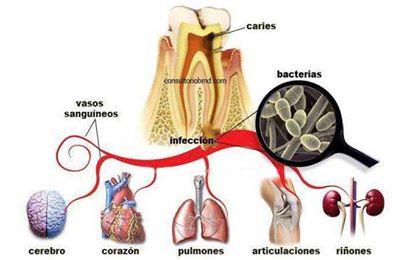 Las medias médicas a varikoze