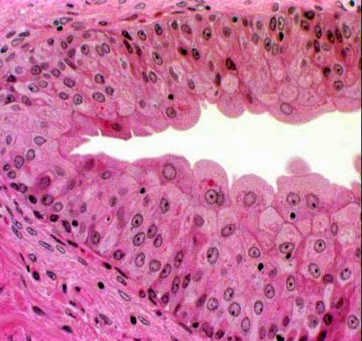 El epitelio como tejido   protector