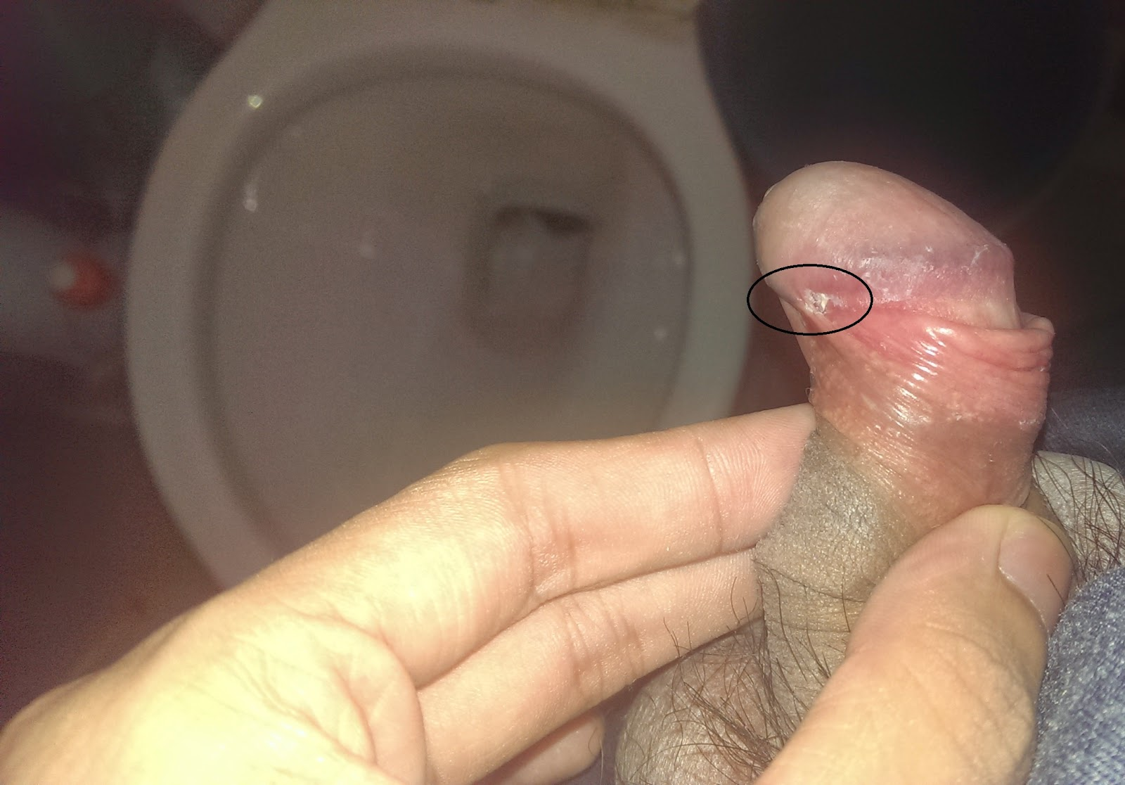Foreskin on penis skin bridge