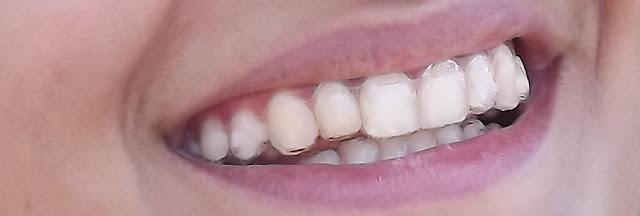 blog blogger SEO référencement avoir les dents droites invisalign taquet gouttières ne pas porter de bagues prendre soin de ses gouttières contentieux