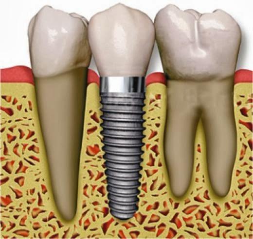 Как долго приживается зубной имплант
