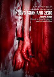 Baixar Filme Nervo Craniano Zero (Nacional)