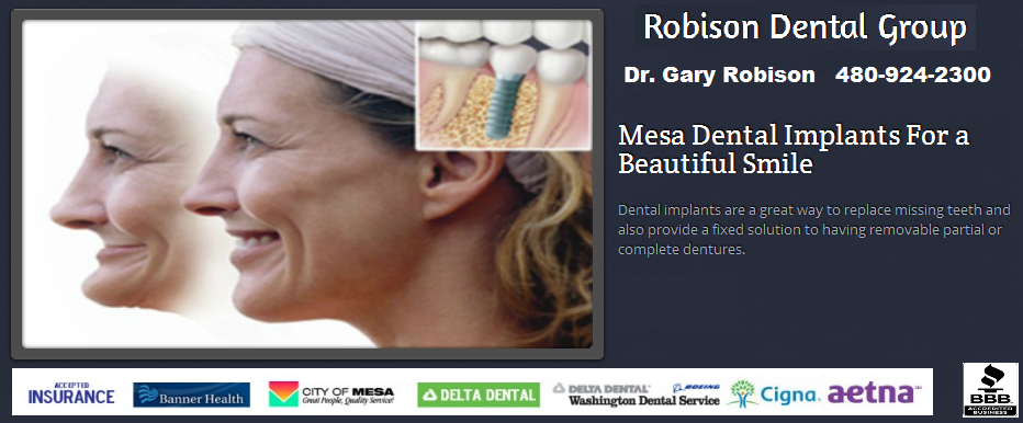 Dental Implants by Mesa AZ Dentist Dr Gary Robison