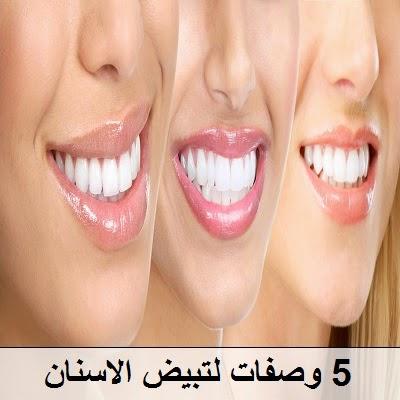 5 وصفات لتبيض الاسنان