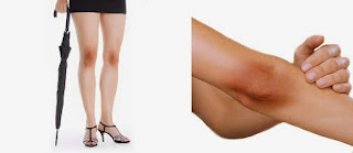 Home remedies to get rid of Black Knees and Elbow