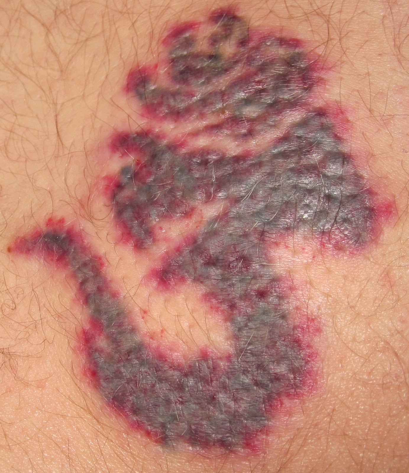 Laser Tattoo Removal Timeline  First Post