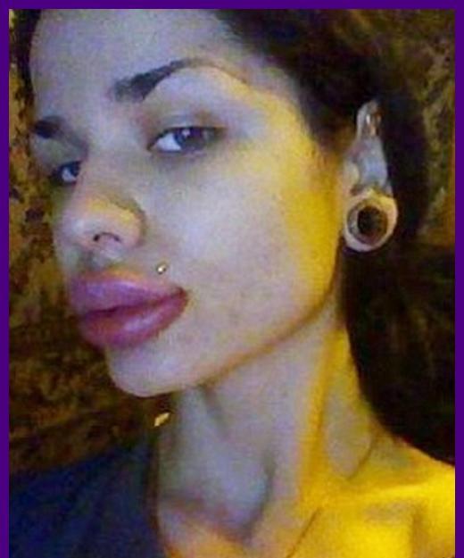 A mulher russa que aplicou mais de 100 injeções nos lábios