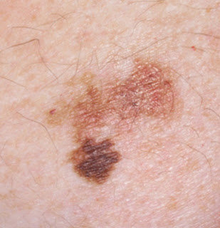 white spots skin cancer