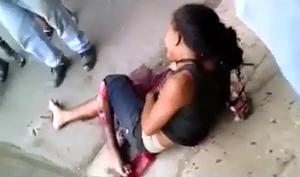 Terriblemente Lesionado por Accidente en Moto